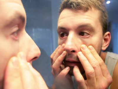 A young man pulls on his face and looks at his eyes in a mirror