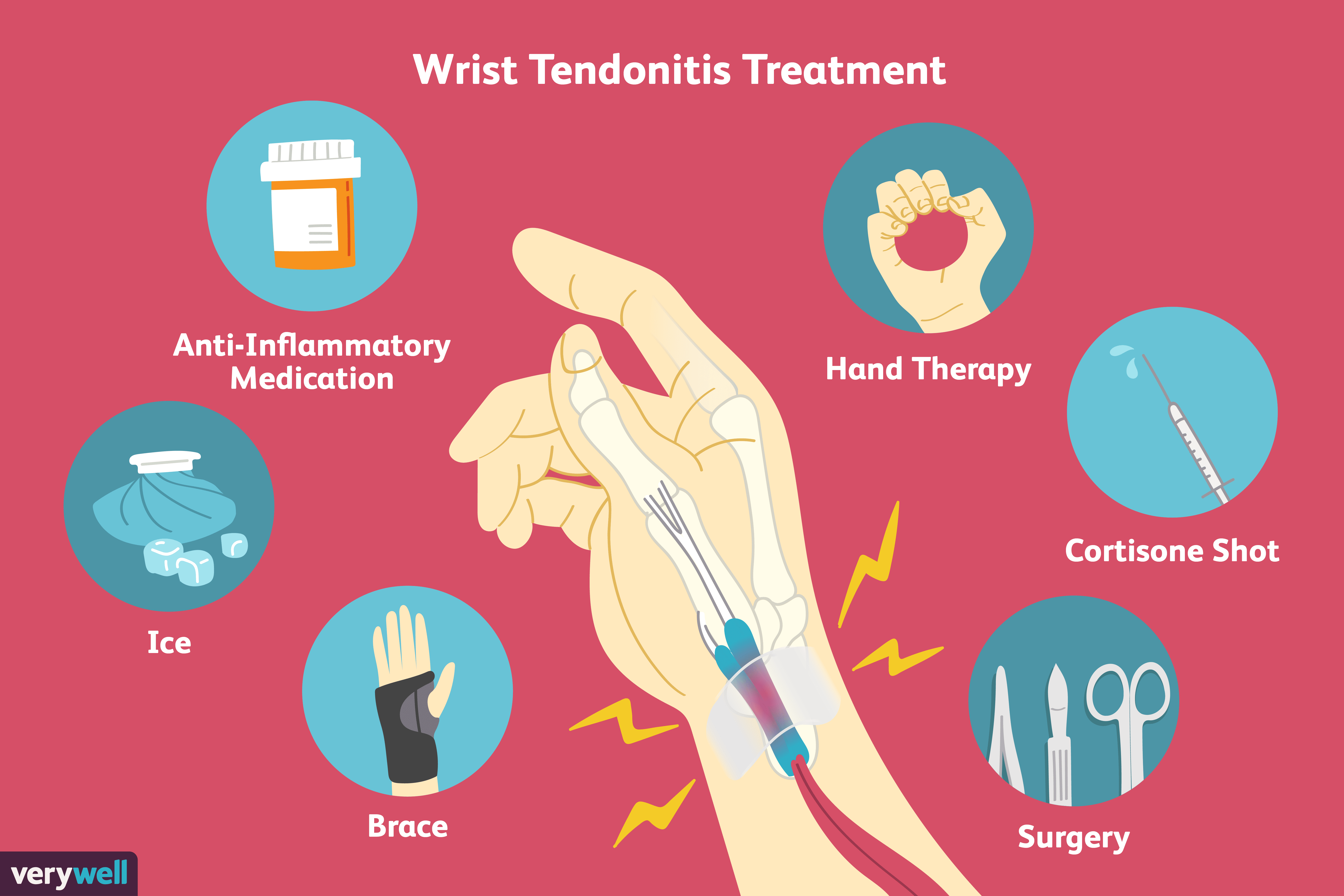 Wrist Tendonitis Signs, Causes, and Treatments