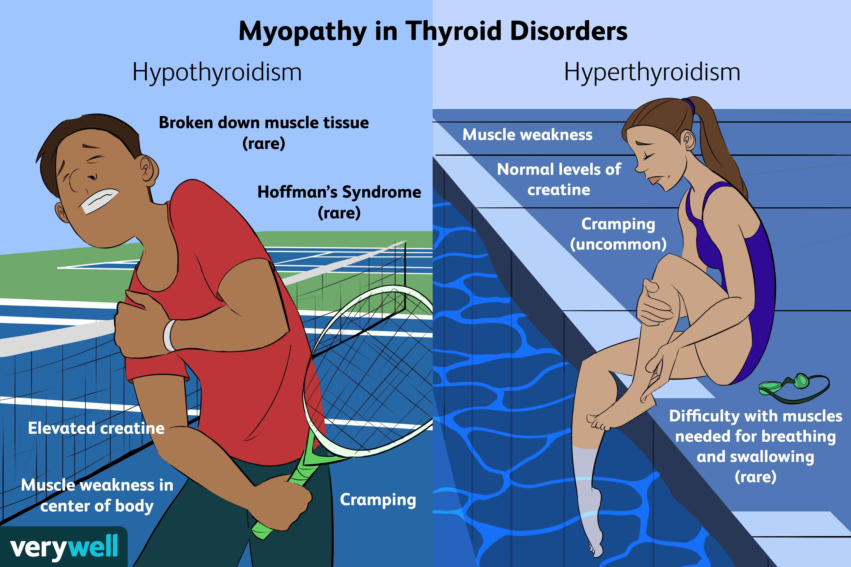 Myopathy in Thyroid Disorders