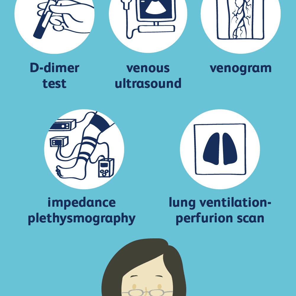 deep vein thrombosis diagnosis