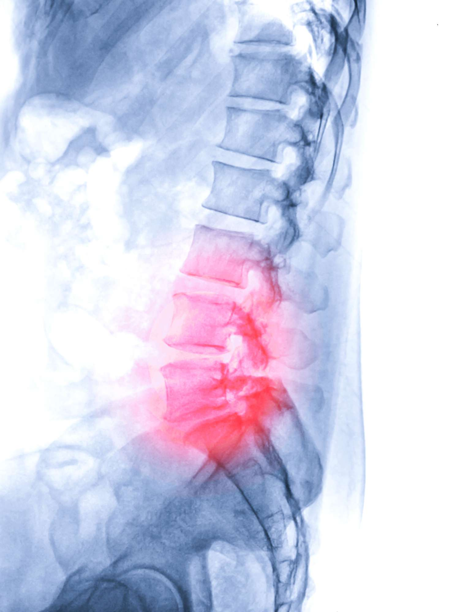 X-ray image of lambosacral spine or L-S spine lateral view from patient lower back