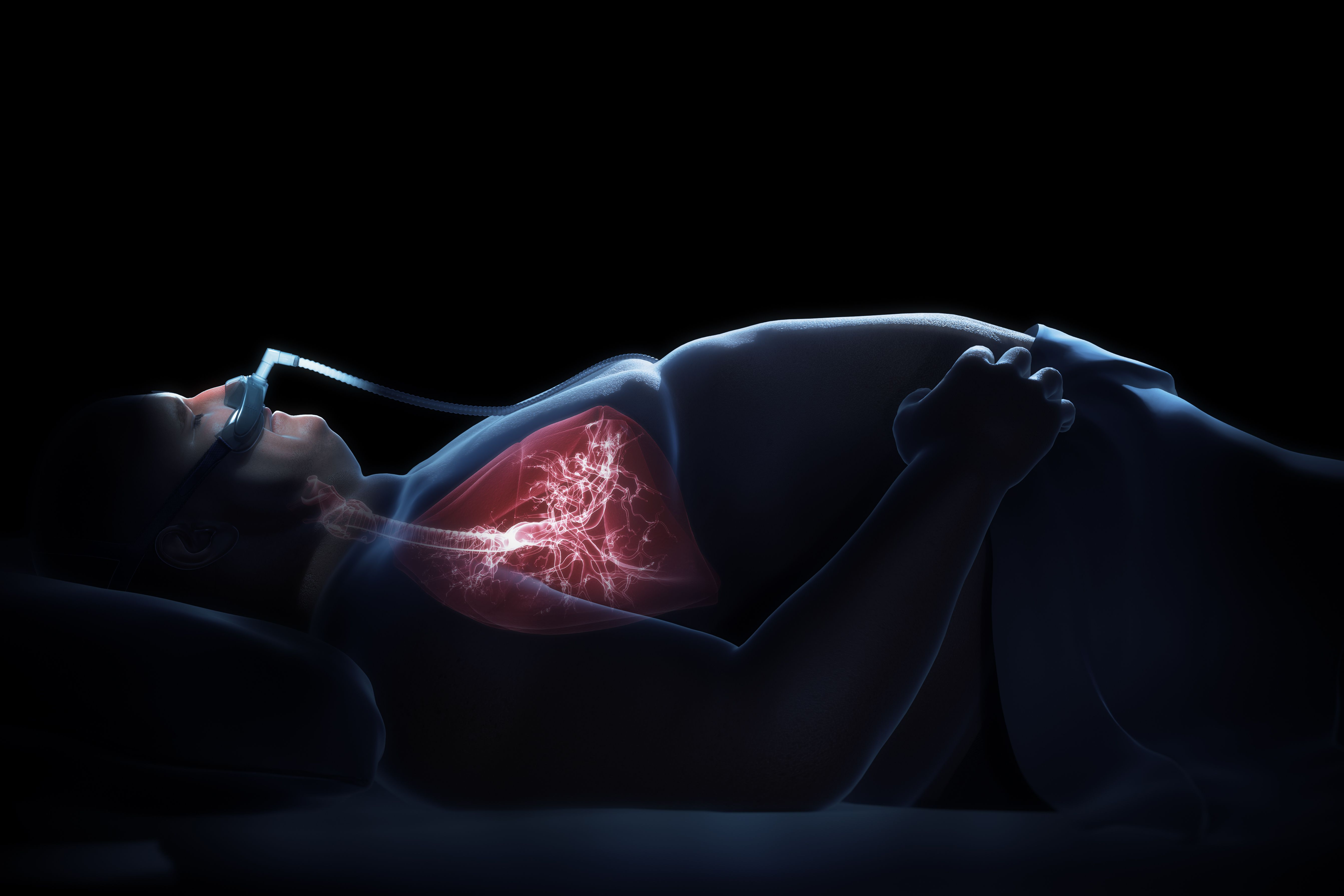 3D graphic of a sleeping man with cpap mask on in bed