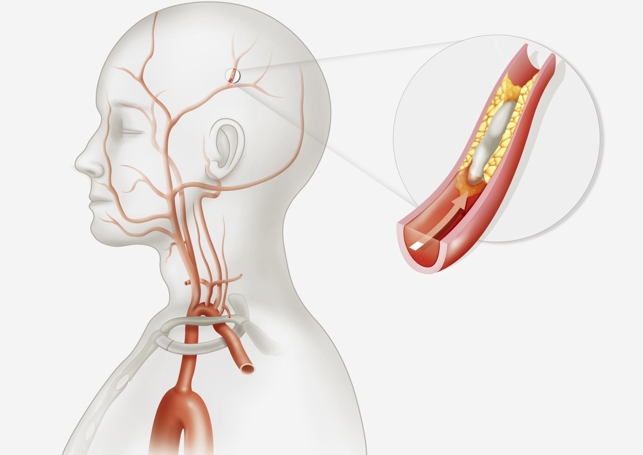 Illustration of the cause of a transient ischemic attack