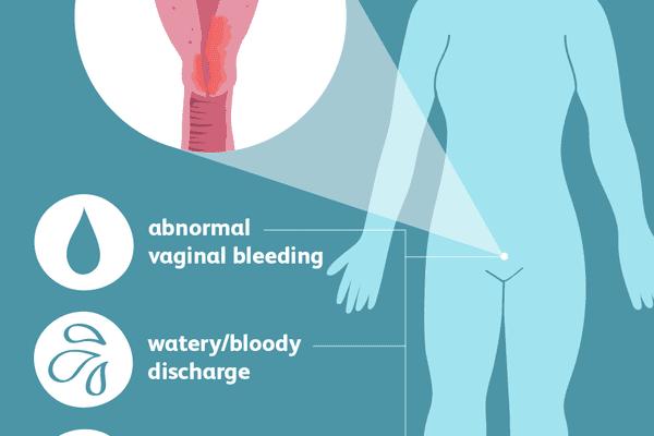 endometrial cancer symptoms