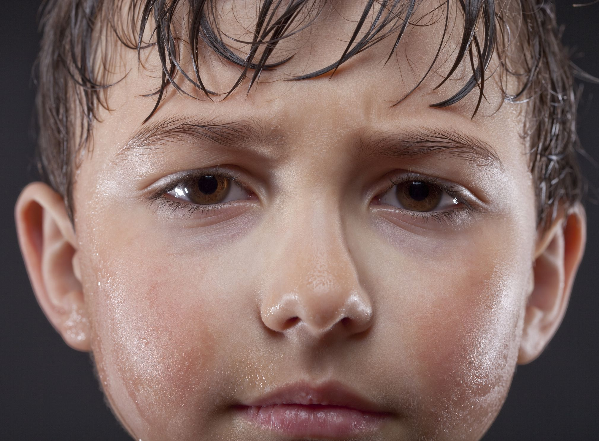 Excessive Sweating (Hyperhidrosis) in Young Children