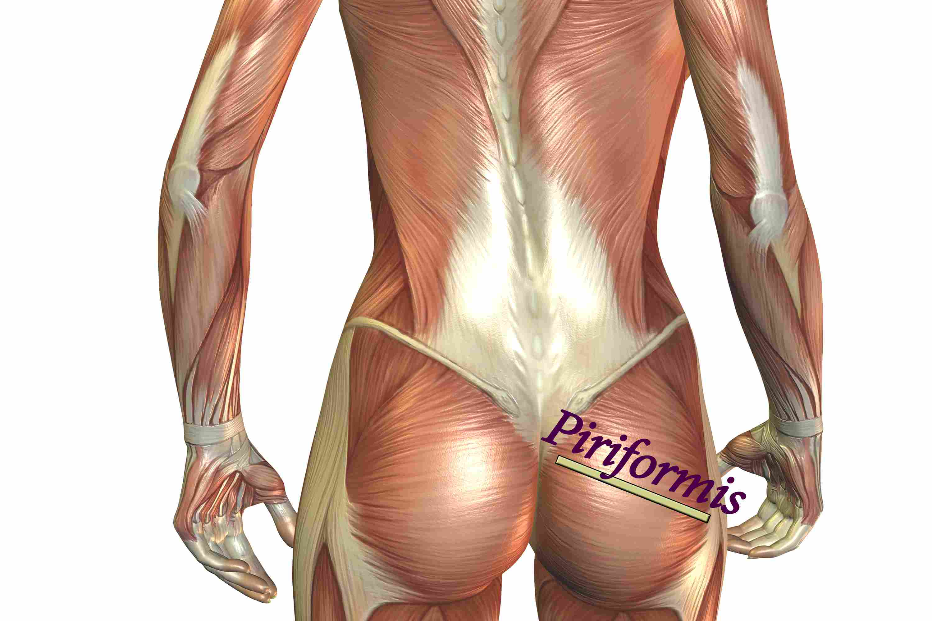 Most Common Causes Of Sciatica