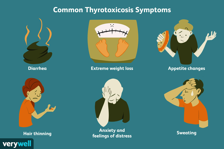 common thyrotoxicosis symptoms