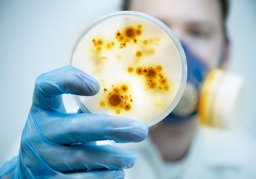 A doctor looking at a petri dish full of pathogens