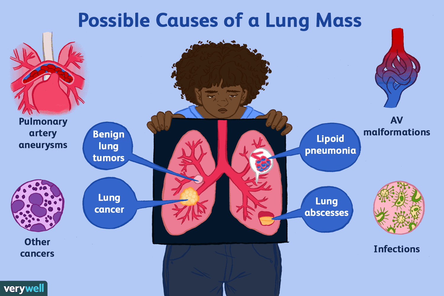 What Does Rt Mean >> Possible Causes of a Lung Mass
