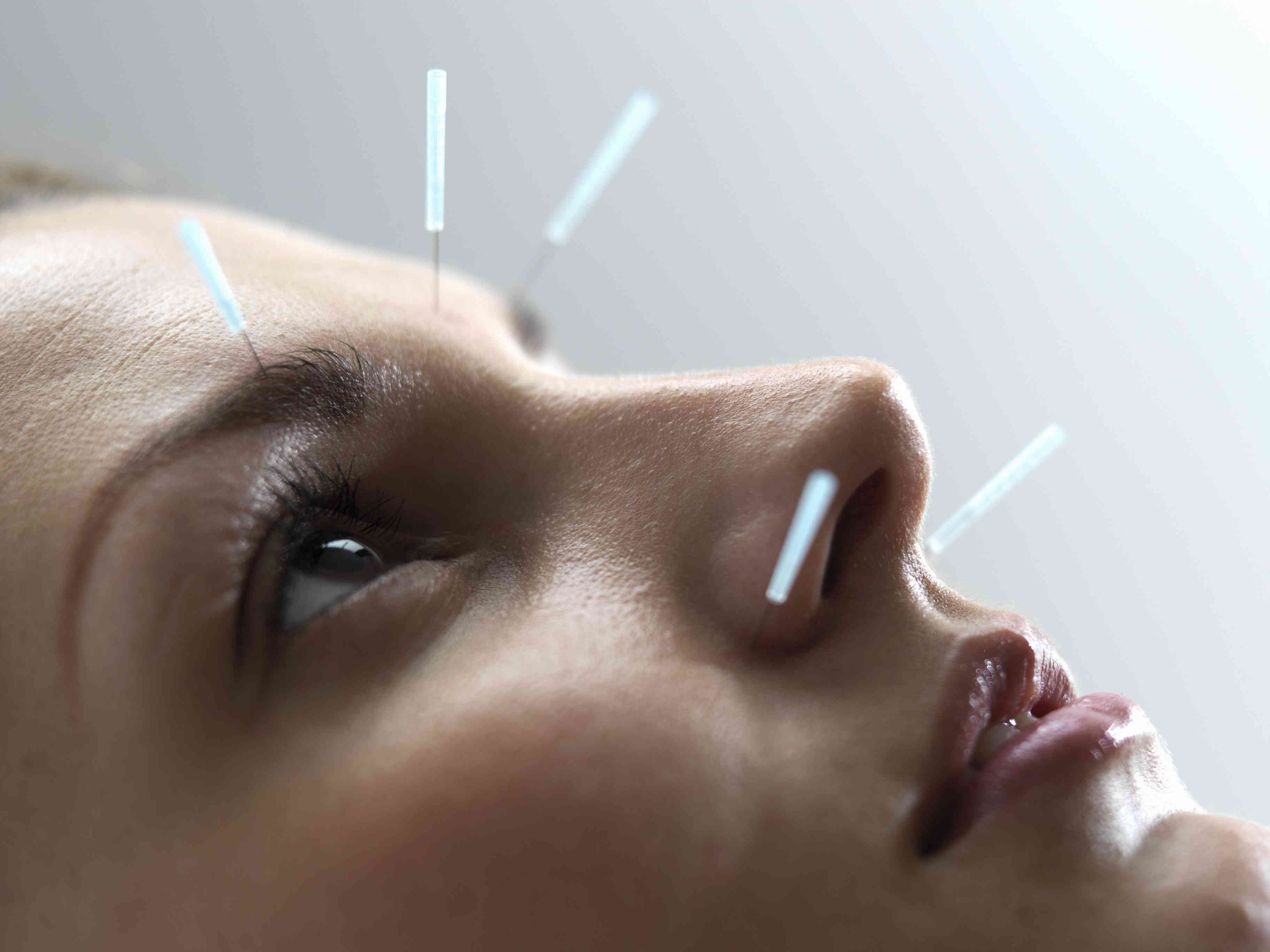 Woman undergoing acupuncture treatment, close-up