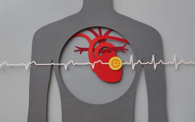 Illustration of heart with pacemaker
