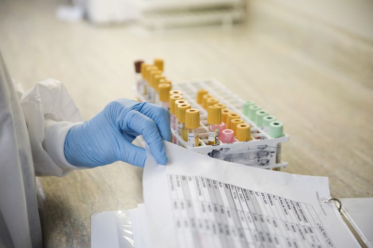 Lab technician with blood samples and medical chart