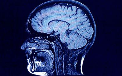 brain head scan