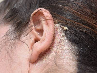woman with serious problem of dandruff