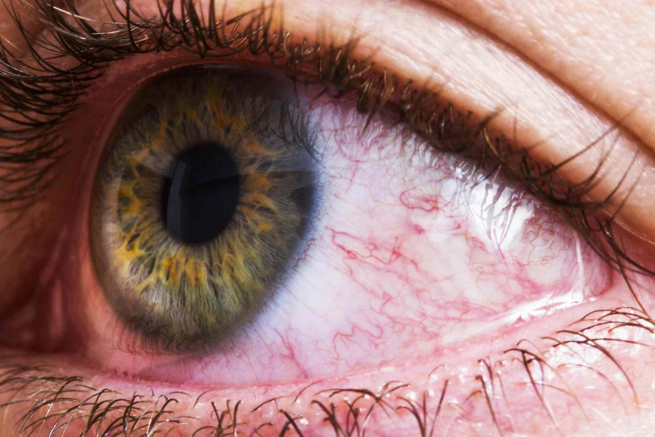 close up of bloodshot eye