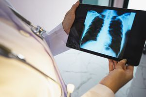 Doctor looking at x-ray of a patient's lungs.