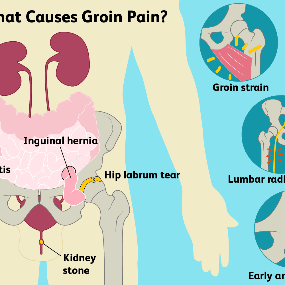 Groin Pain Causes Treatment And When To See A Doctor