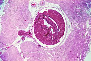 leg vein thrombosis