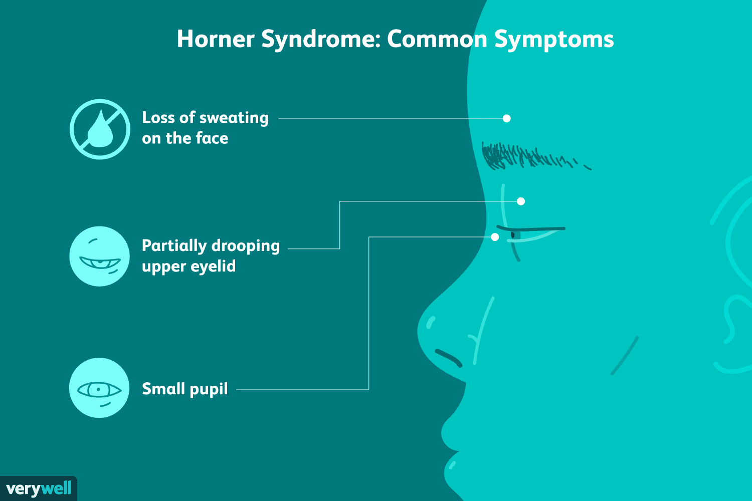 Horner Syndrome: Symptoms, Causes, Diagnosis, Treatment