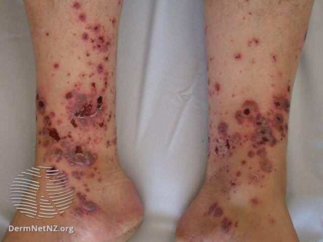 vasculitis on the ankles