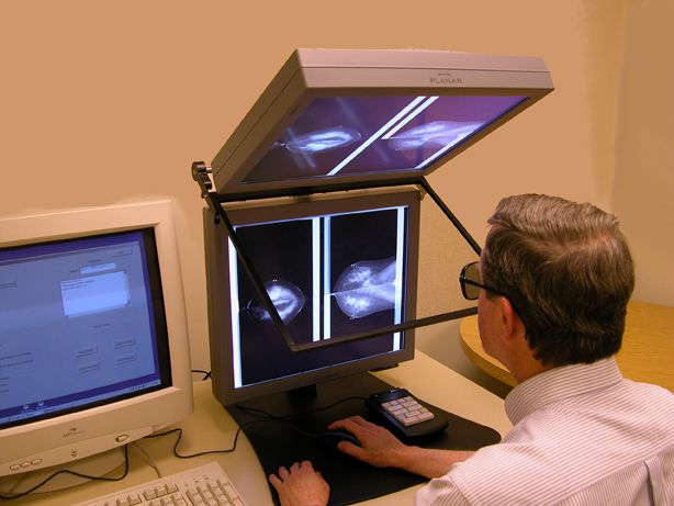 Stereo Digital Mammography