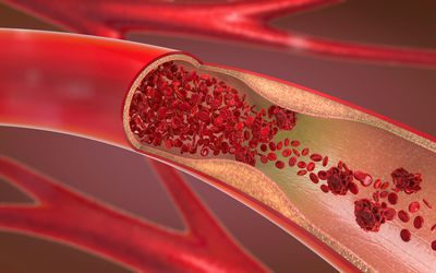 An illustration shows arteries with a section cut away to reveal red blood cells inside.