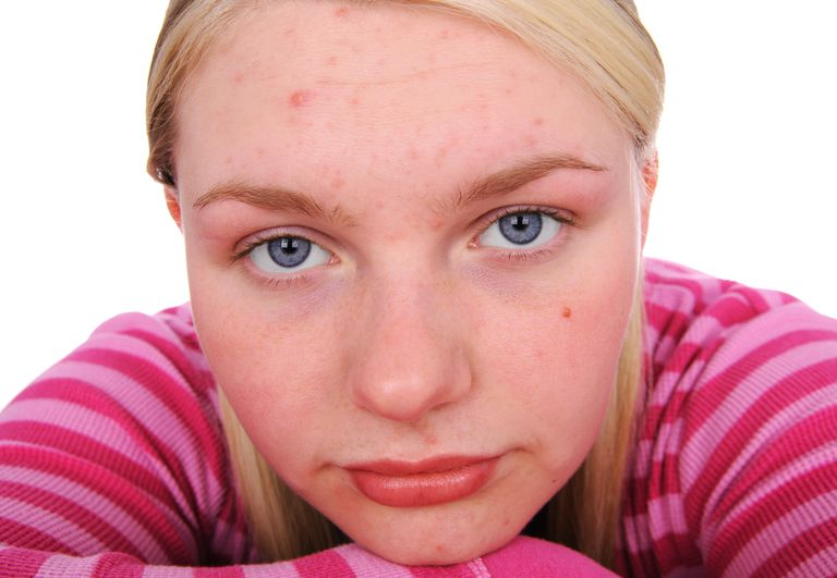 Young woman with mild acne.