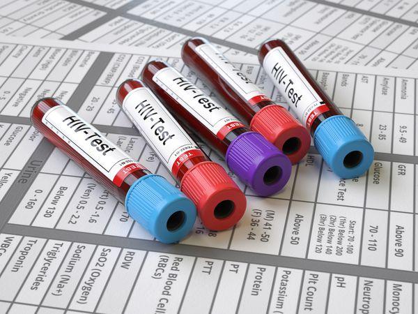 HIV test blood vials