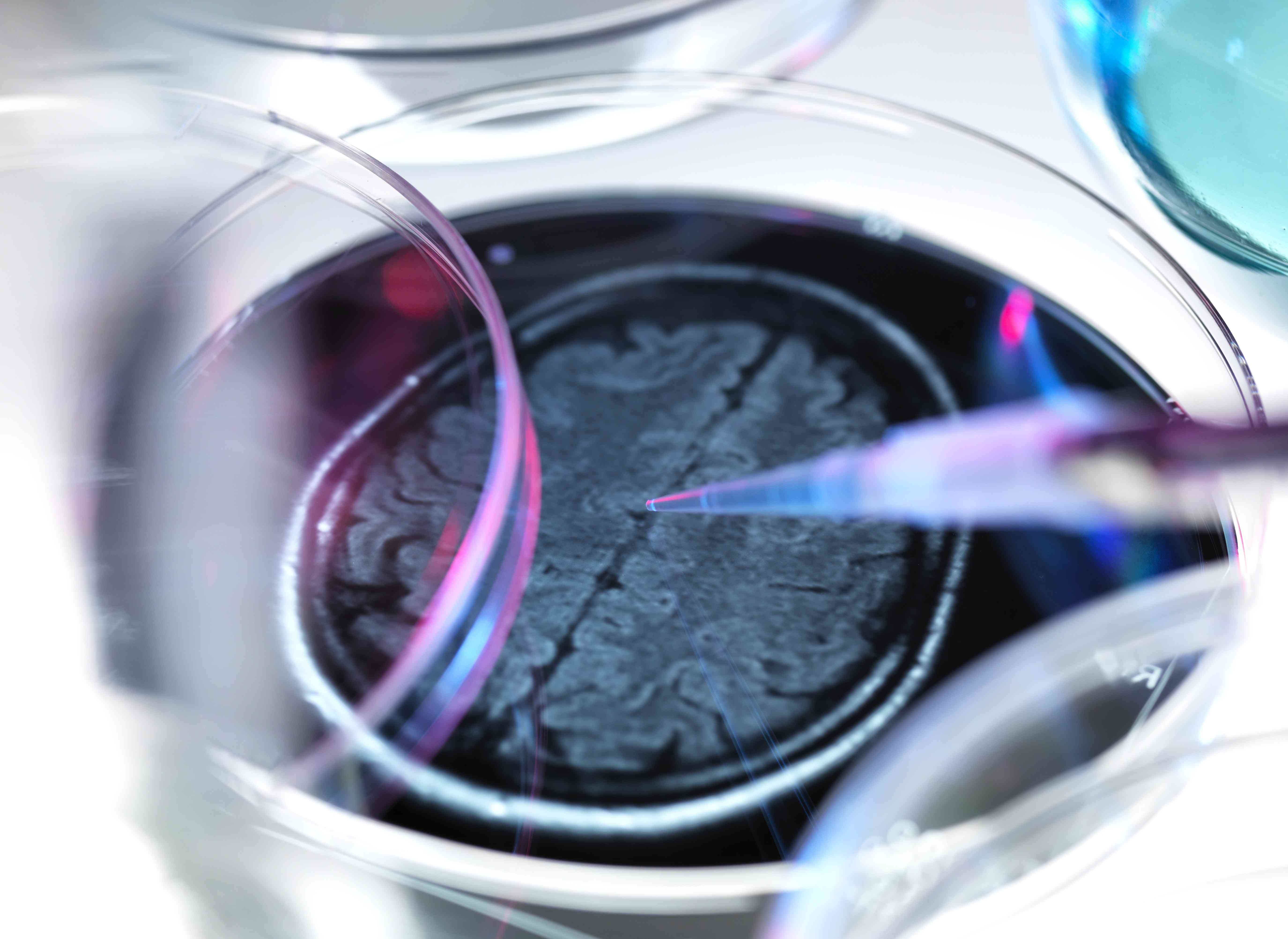 Brain scan in a petri dish illustrating research into dementia and other brain disorders