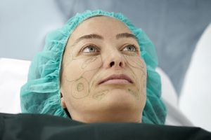 Woman ready for surgical face lift