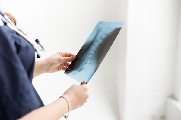 Doctor examining chest x-ray film of patient at hospital on white background, copy space