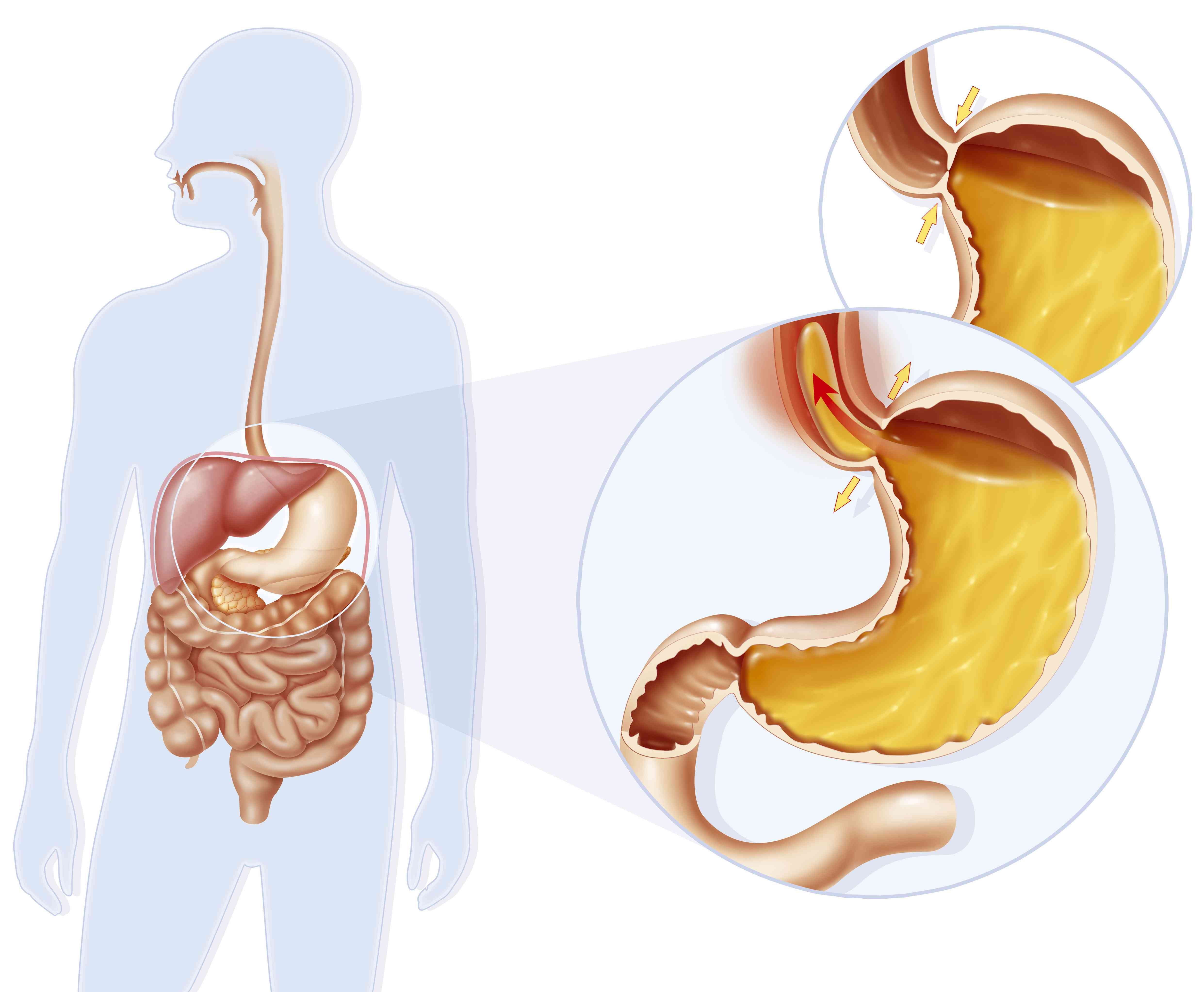 Acid reflux due to improper closure of sphincter