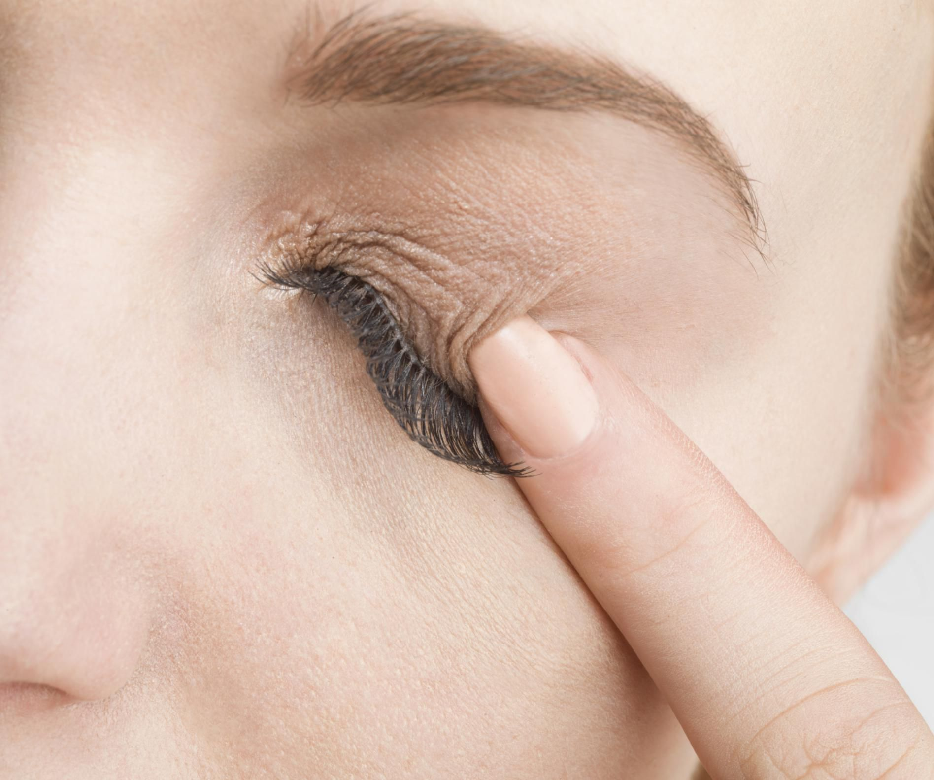 Common Causes Of Eyelid Rashes