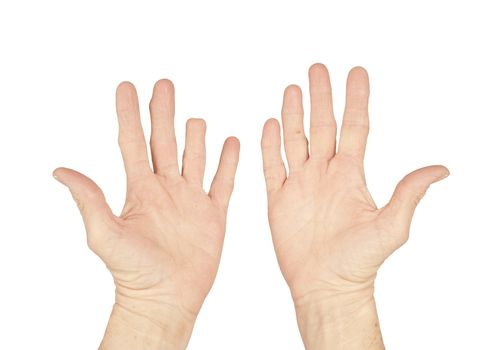 hands with and amputated finger
