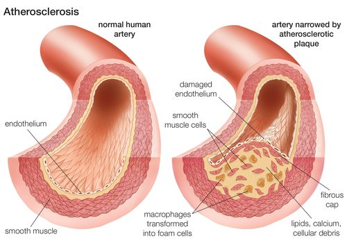 Atherosclerosis: Comparison of a normal artery with an artery narrowed by atherosclerotic plaque