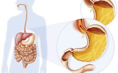 Acid reflux due to improper closure of sphincter.