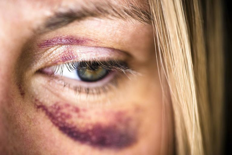 How Serious Are the Different Types of Hematomas?
