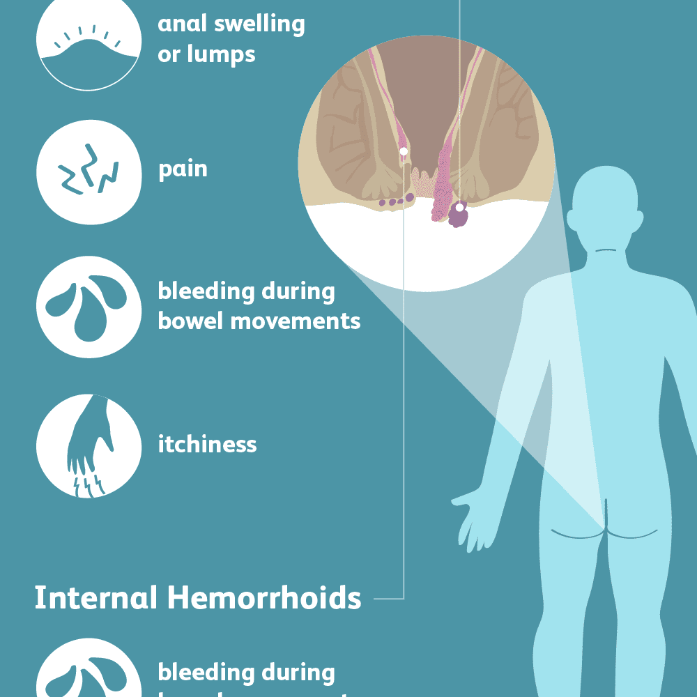 symptoms of hemorrhoids