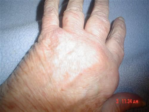 a photo gallery of arthritic hands