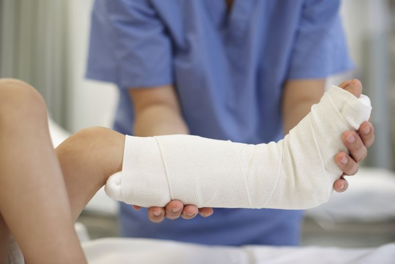 Signs That There May Be a Problem With Your Cast
