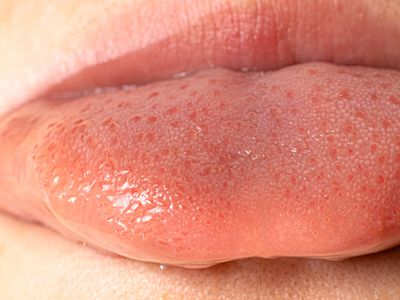 thrush on lips and tongue
