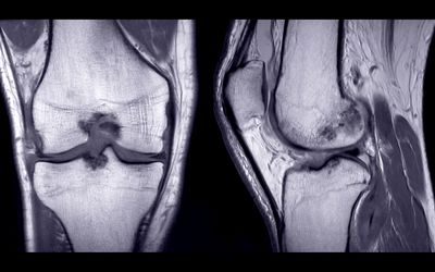MRI image of knee joint