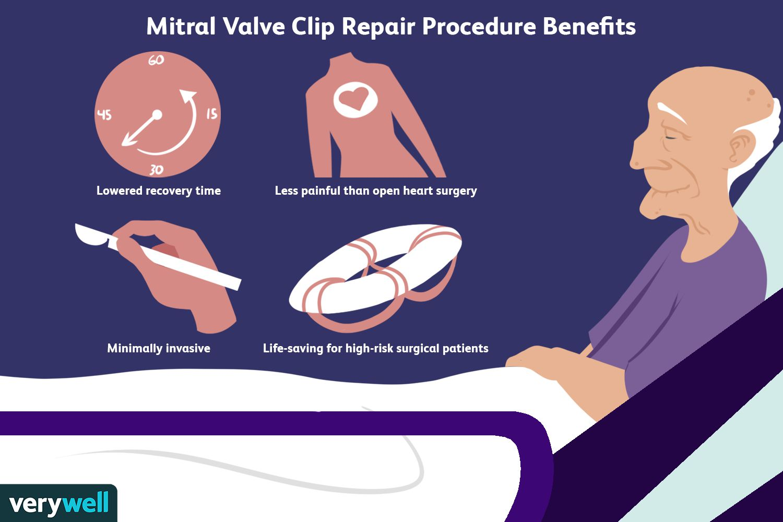 Mitral Valve Clip Repair Procedure Benefits