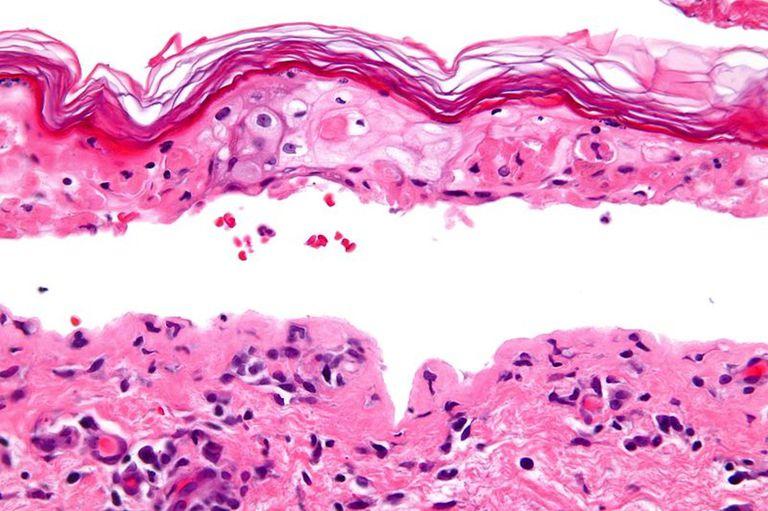 Confluent Epidermal Necrosis