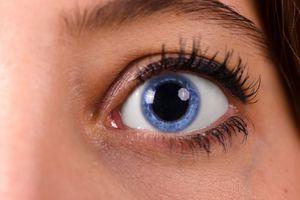 Dilated pupil/blue eye.