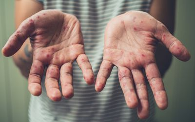 Rash on the palms is a common early symptom of GvHD in transplant recipients