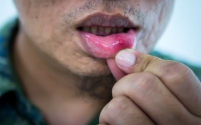 Canker Sore Remedies That Actually Work