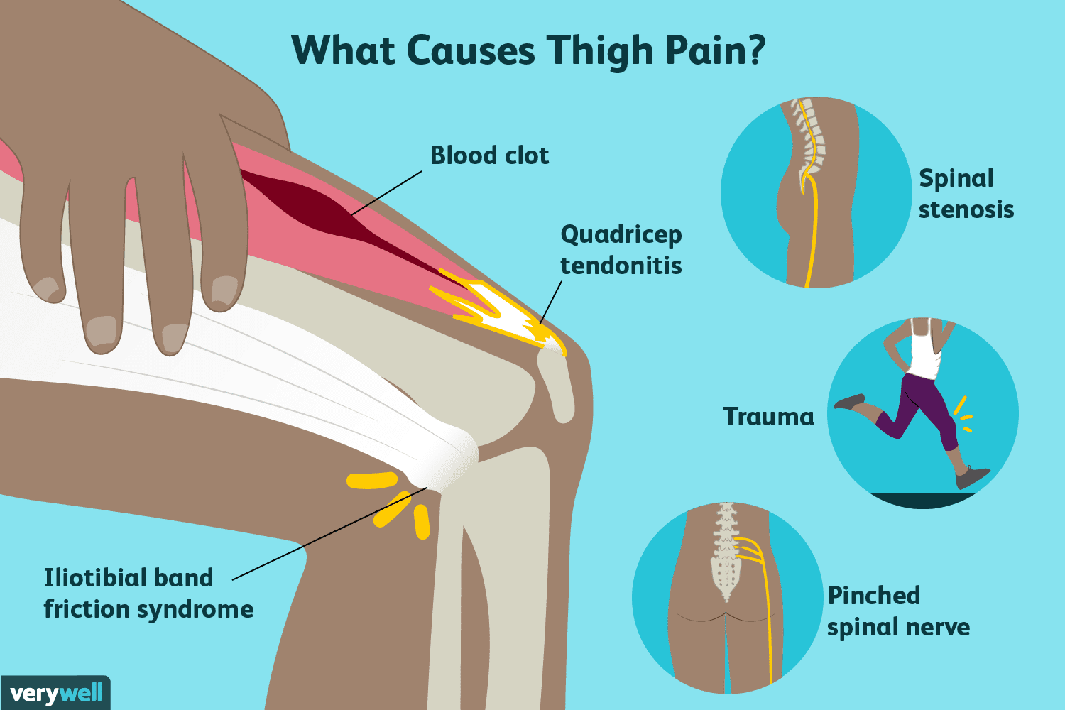 pain appear in mitt edge poor portion joint