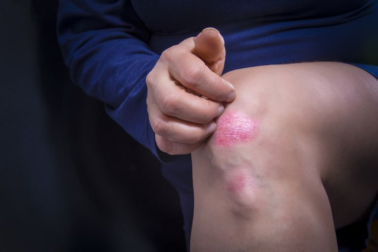 Psoriasis skin plaque on woman's knee