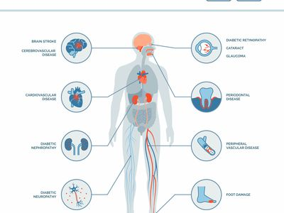 Long-term complications of diabetes medical infographic: diabetes effects on the body